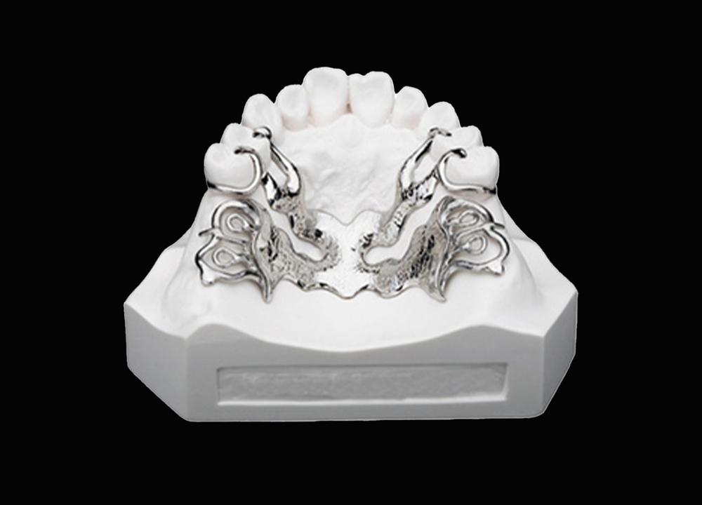 3D打印钛合金支架